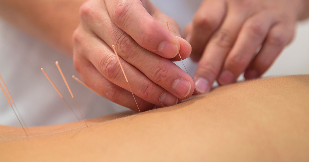 Acupuncture treatment on back