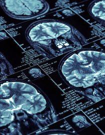 Early Rheumatoid Arthritis Detection Through MRI