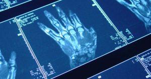 MRIs of a hand