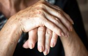 Rheumatoid Arthritis in Fingers and Hands