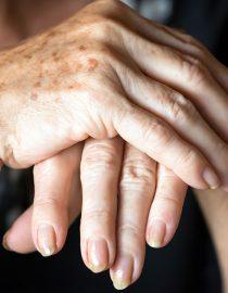 Keeping Your Fingers Limber Despite Arthritis