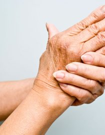 Preventing and Treating Joint Deformities With Rheumatoid Arthritis