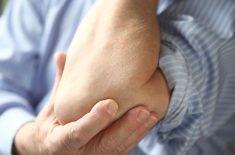 Everything You Need to Know About Rheumatoid Nodules