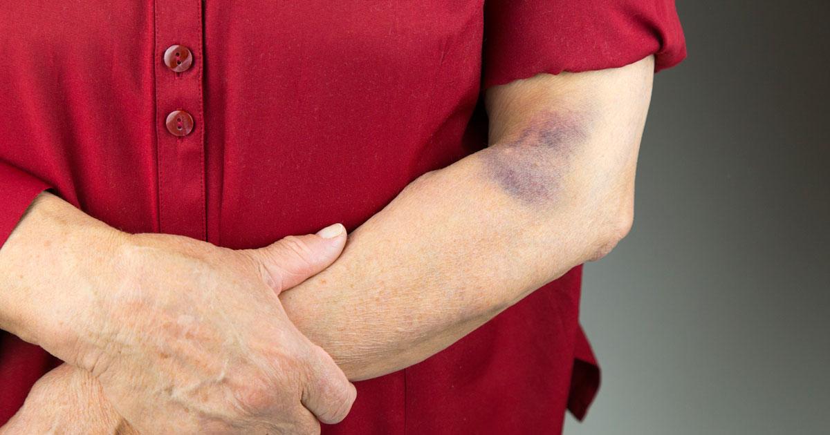 Rheumatoid Arthritis Bruising