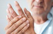 Rheumatoid Arthritis Hands