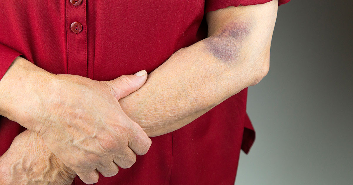 Man standing with arms folded across abdomen, bruise on arm near elbow
