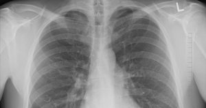 a lung X-ray
