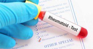 a blood test vial for the rheumatoid factor range test